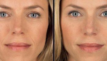 Инъекционная контурная пластика лица