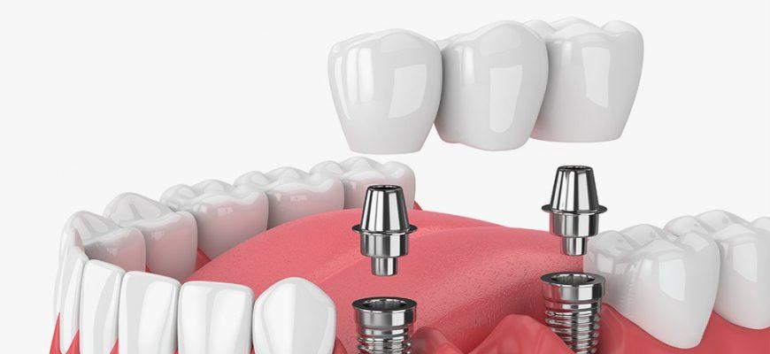 Имплант или мост на зубы