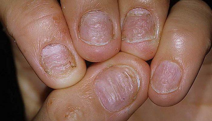 Псориаз ногтей и как его избежать, особенности лечения