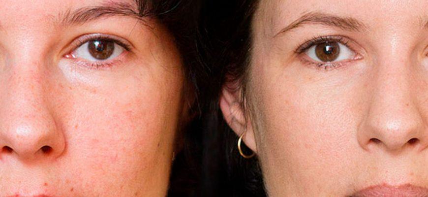 Что такое фотоомоложение кожи